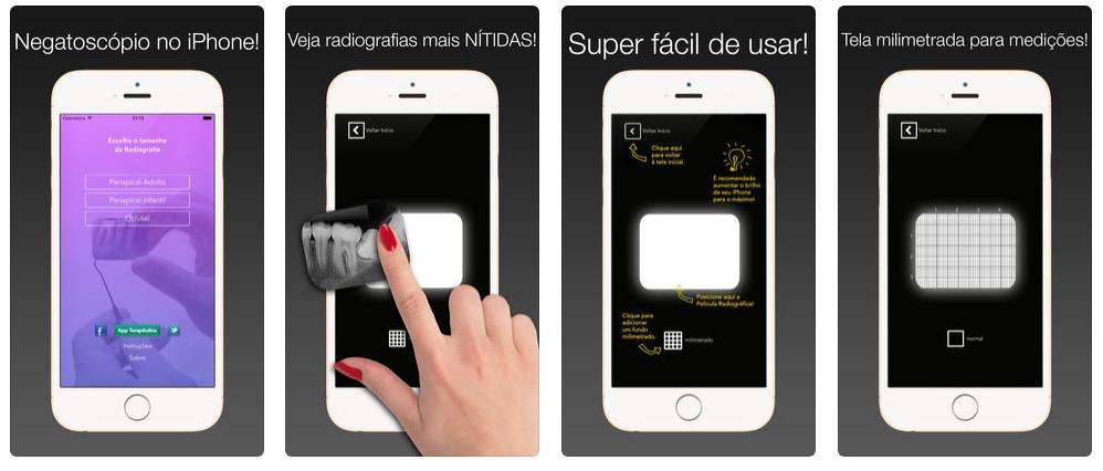 app-para-dentista-para-enxergar-radiografia-negatoscope